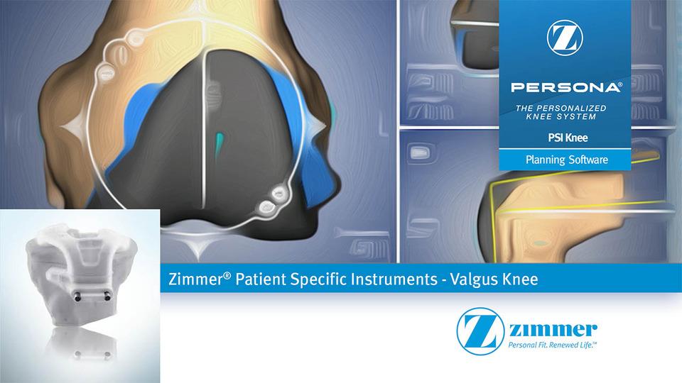 Zimmer 174 Psi Knee Planning Valgus Knee