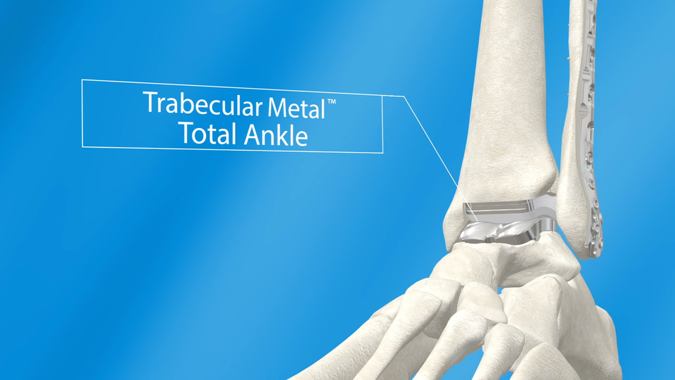 Trabecular Metal U2122 Total Ankle Animated Demonstration