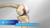 Vanguard® Premier™ Total Knee Surgical Technique Animation