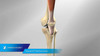 Vanguard XP® Total Knee System Animation